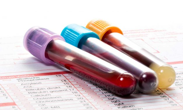 BLOOD WORK AND URINALYSIS